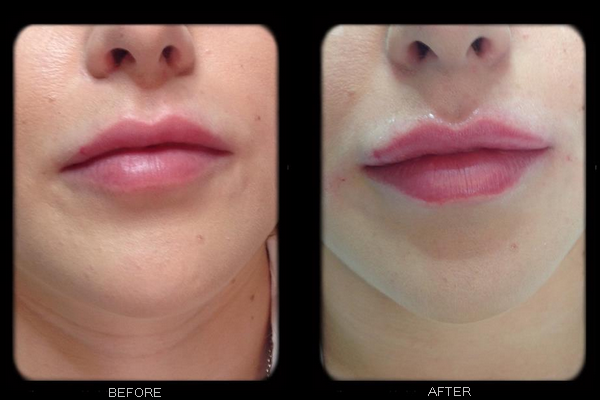 Photos of botox before and after | Lucy Banks Medical Aesthetics